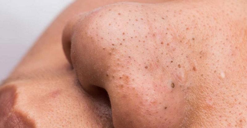 Nguyên nhân và cách điều trị mụn cám, mụn đầu đen