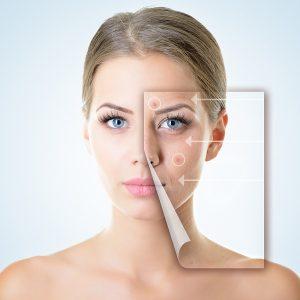 Cách trị mụn đầu đen ở mũi tận gốc tại nhà mang lại hiệu quả rõ rệt